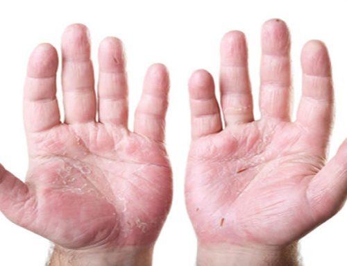Egzama (Atopik Dermatit)