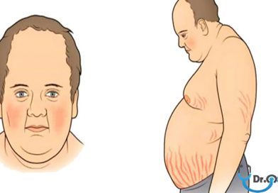Cushing Hastalığı ve Cushing Sendromu