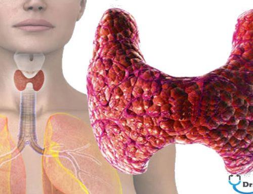 Kronik Fibroz Tiroiditi (Riedel Tiroiditi)